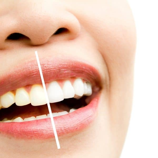 Diş Taşı (tartar) Nedir ve Nasıl Oluşur?