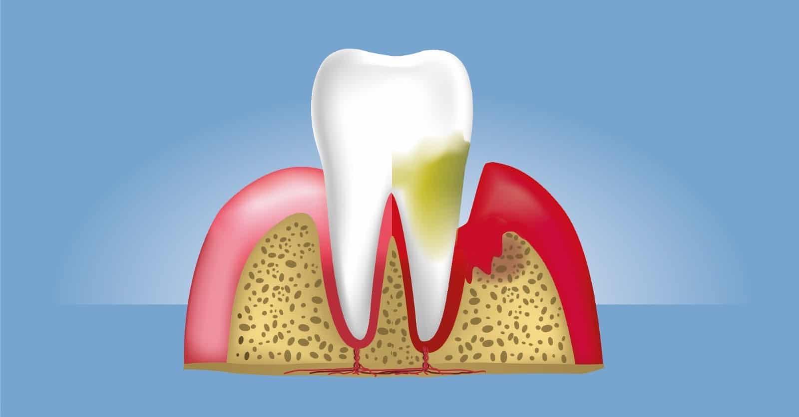 Diş Eti Hastalıklarını Önlemenin Yolu; Aquapick Ağız Duşu