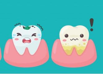 Diş Çürüğü Nasıl Oluşur?