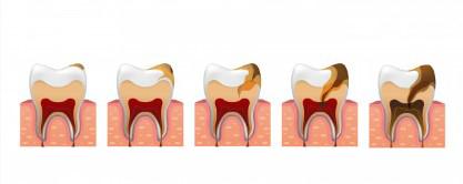 Diş Kökü İltihabı Nedir?