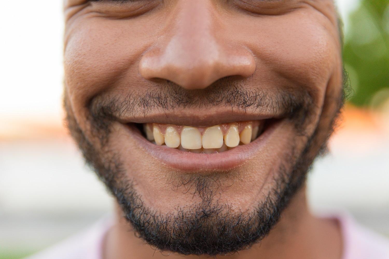 Diş Minesi Aşınması Nedir?