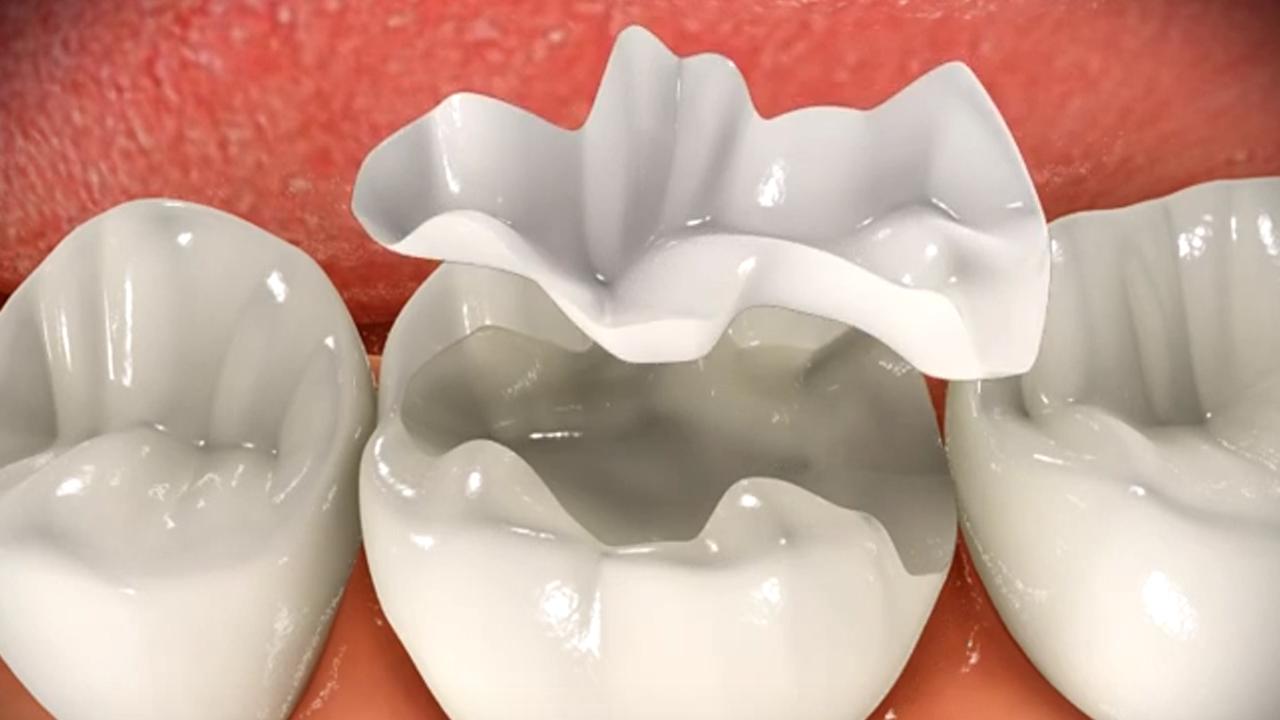 Inlay-Onlay (Porselen Dolgular) Nedir?