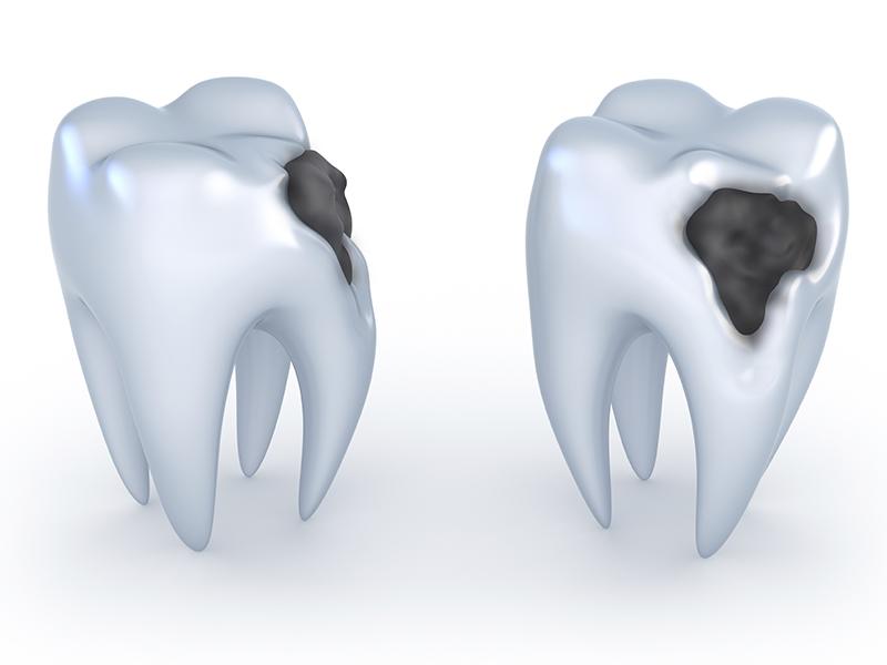 Diş Çürüğü Hakkında Bilinmesi Gerekenler