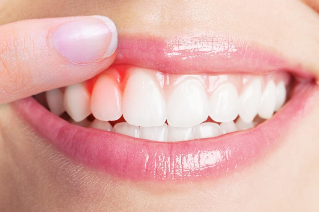 Diş Eti Neden Şişer?