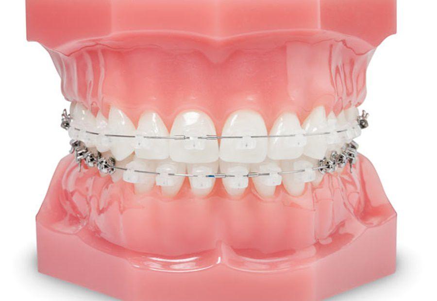 Ortodontik (Diş Teli) Tedavi Çeşitleri