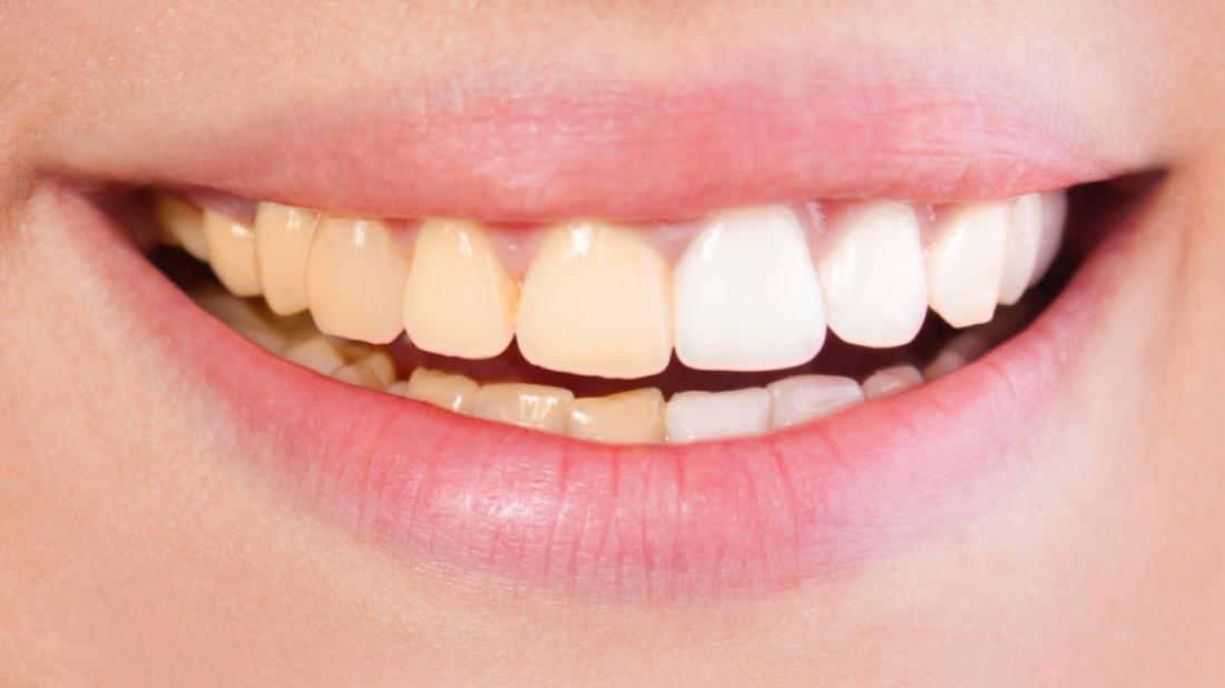 Dişlerde Renklenme Neden Olur?