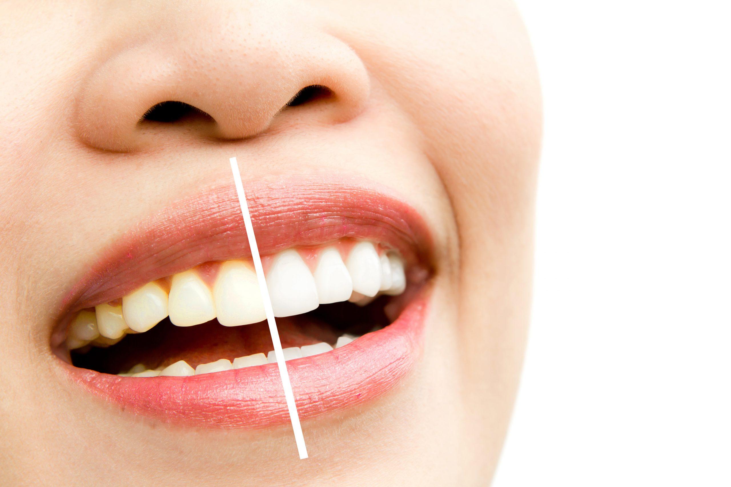 Diş Taşı Temizletmek Zararlı Mıdır?