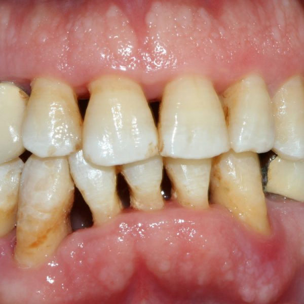 Diş Eti Çekilmesi Nedir?