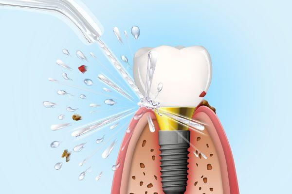 Aquapick Ağız Duşu İle Implant Temizliği